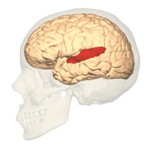 area brodmann trastorno lenguaje