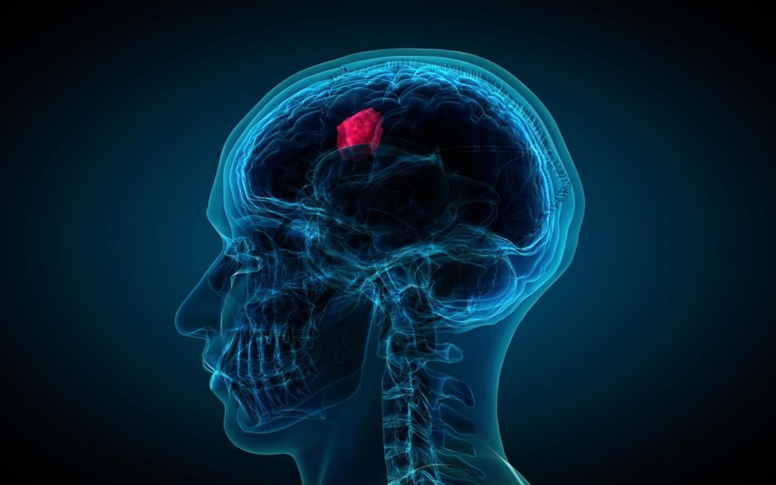 Tumores cerebrales y rehabilitación de los déficits cognitivos