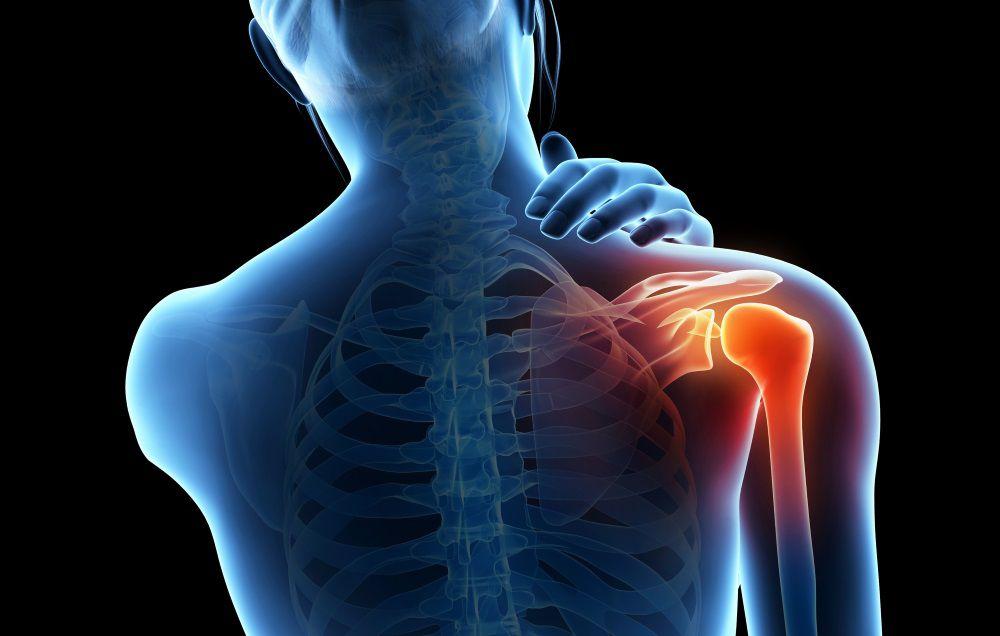 Paciente con ictus: hombro doloroso