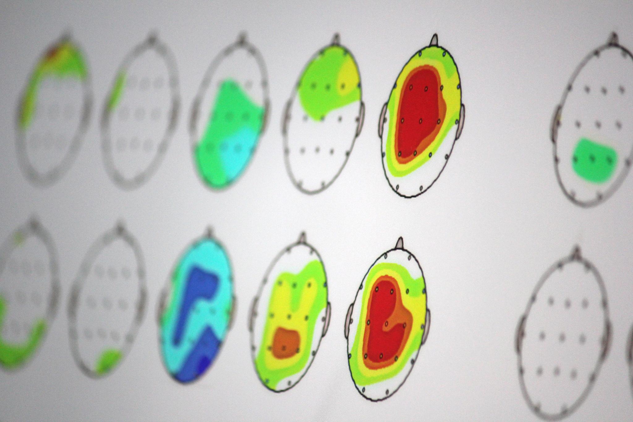¿Para qué es útil el Mapeo Cerebral?