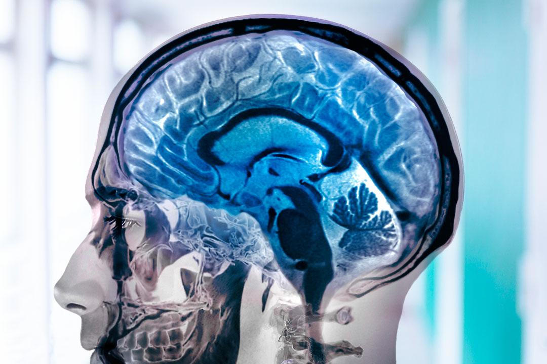 La diferencia entre la neurología y la psiquiatría